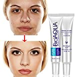 Best Acne Scar Removal Creams - BIOAQUA Anti Acne Scar Mark Remover Removal Oil Review