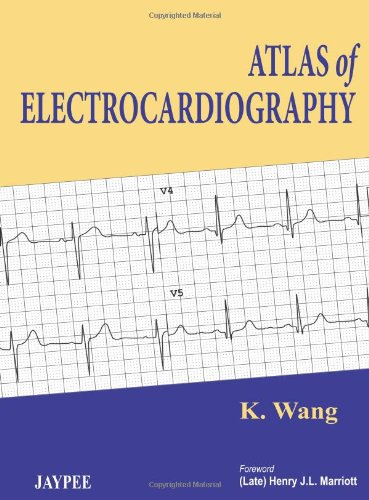 atlas-of-electrocardiography