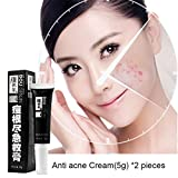 Homely Anti Acne Cream capillary rosacea skincare acne patch pimple acne scars skin