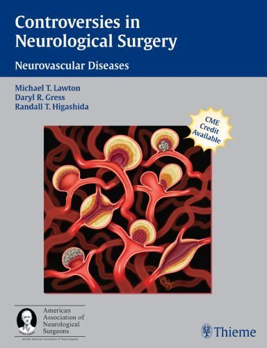 Controversies in Neurological Surgery: Neurovascular Diseases (A Co-Publication of Thieme and the American Association of Neurological Surgeons) (2006-09-12)