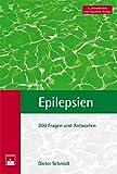 Epilepsien: Fragen und Antworten