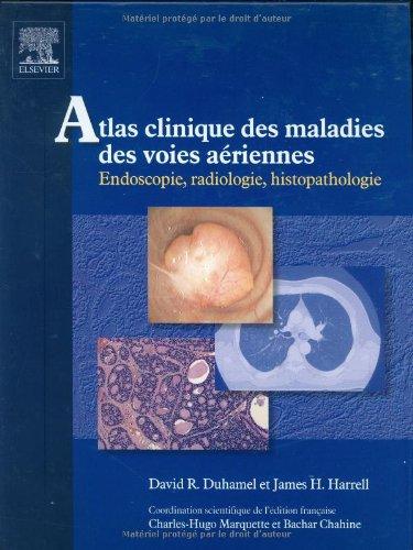 Atlas clinique des maladies des voies aériennes : Endoscopie, radiologie, histopathologie (1Cédérom) (Ancien prix éditeur : 87 euros)