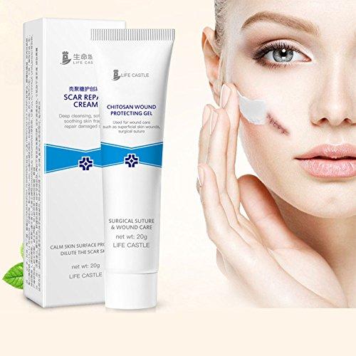 Xuba Scar e acne rimozione gel Pomata acne Scar Cream