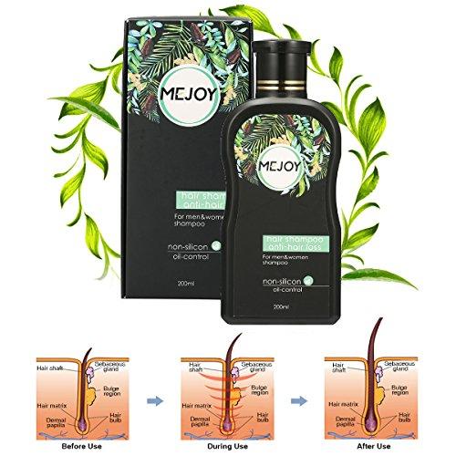 Anti-Hair Loss Shampoo For Men & Women Luckyfine – Hair Growth, Helps Stop Hair Loss .Stimulates Hair Re-growth Dandruff Treatment 200ML
