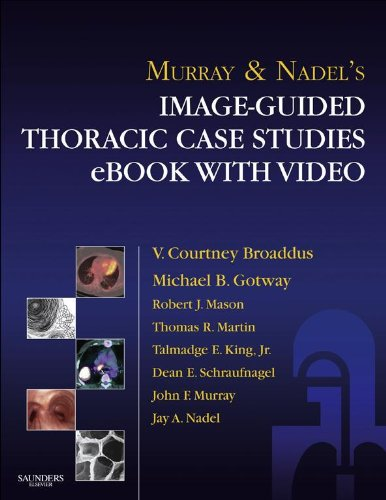 Murray & Nadel's Image-Guided Thoracic Case Studies - E-Book with Video (English Edition)