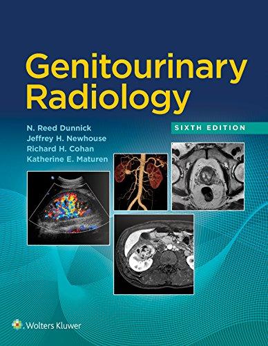 Genitourinary Radiology (English Edition)