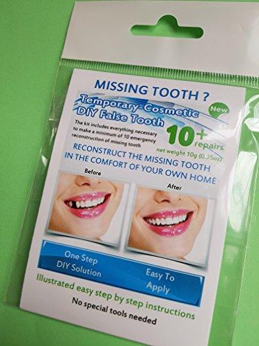 Provisorischer Zahnersatz - Einzelpaket