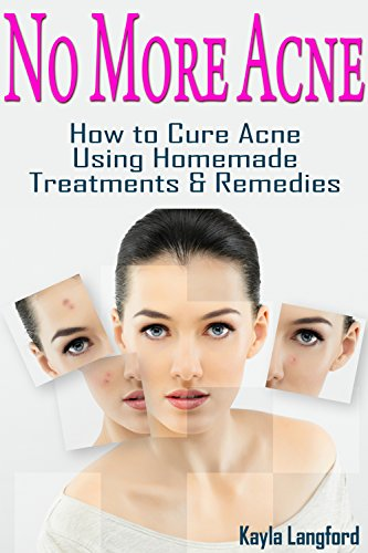 No More Acne: How to Cure Acne Using Homemade Treatments & Remedies (English Edition)