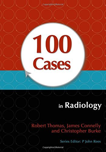 100 Cases in Radiology by Robert Thomas (2012-02-24)