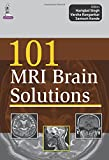 101 Mri Brain Solutions