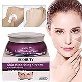 WhiteningCream, Freckle Remover Cream, Lightening Cream, Brightening Cream, Anti Ageing Facial Treatment For