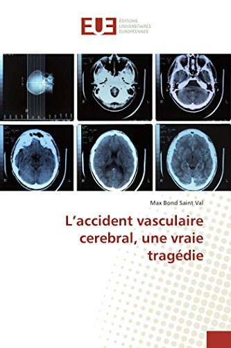 L'accident vasculaire cerebral, une vraie tragédie