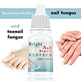 Toenail Fungus Treatments - Best Reviews Guide