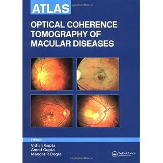 Atlas of Optical Coherence Tomography of Macular Diseases by Vishali Gupta (2004-11-12)
