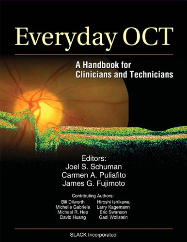Free eBook Everyday OCT: A Handbook for Clinicians and Technicians
