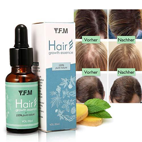 Anti-Haarausfall Öl, Y.F.M Haarwachstums Serum Anti-Haarausfall Serum, Schnelle Haarwachstum Essenzen, Nährende Essenzen für Haarpflege, stärkt Haarwurzeln und fügt natürlichen Glanz