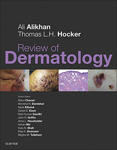 Review of Dermatology (English Edition)