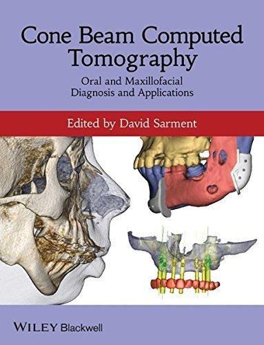 Cone Beam Computed Tomography: Oral and Maxillofacial Diagnosis and Applications (2013-12-31)