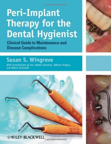 Peri-Implant Therapy for the Dental Hygienist: Clinical Guide to Maintenance and Disease Complications by Susan S. Wingrove (2013-08-16)