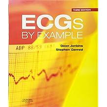 ECGs by Example, 3e