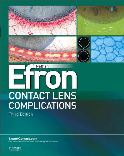 Contact Lens Complications: Expert Consult - Online and Print