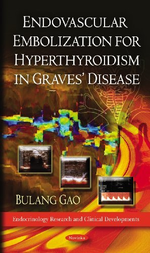 Endovascular Embolization for Hyperthyroidism in Graves' Disease (Endocrinology Research and Clinical Developments) by Bulang Gao (2011-08-23)
