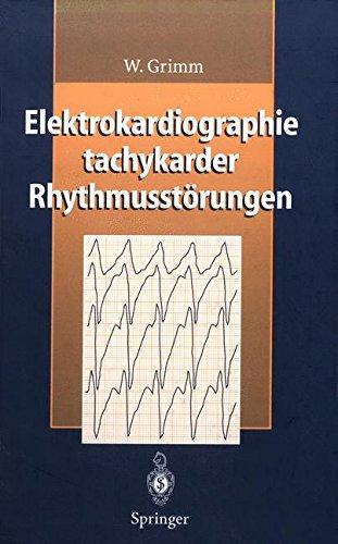 Elektrokardiographie tachykarder Rhythmusstörungen
