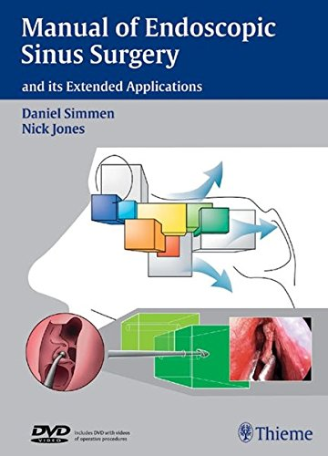 Manual of Endoscopic Sinus Surgery: and its Extended Applications (Med Stamm)