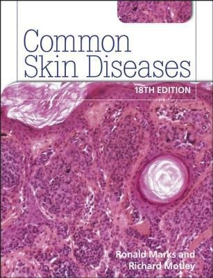 [(Common Skin Diseases)] [Author: Ronald Marks] published on (September, 2011)
