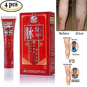Varicose Veins Cream, leegoal Relief Phlebitis Vasculitis Angiitis Inflammation Blood Vessel Spider Vein Herbal Health Care Ointment (4 pcs)