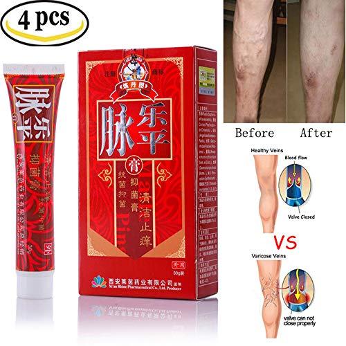 Varicose Venen Creme, MOGOI Relief Phlebitis Vaskulitis Angiitis Entzündung Blut Gefäß Spinnen Vene Kräuter Gesundheit Salbe (4 pcs)