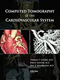 Computed Tomography of the Cardiovascular System