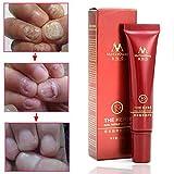 Best Toenail Fungus Treatments - Tradico Toenail Fungus Treatment Cream Finger Toe Nail Review