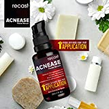 Acnease Facial Serum - Acne Clearing Serum - Extremely effective on Acne, Blemishes