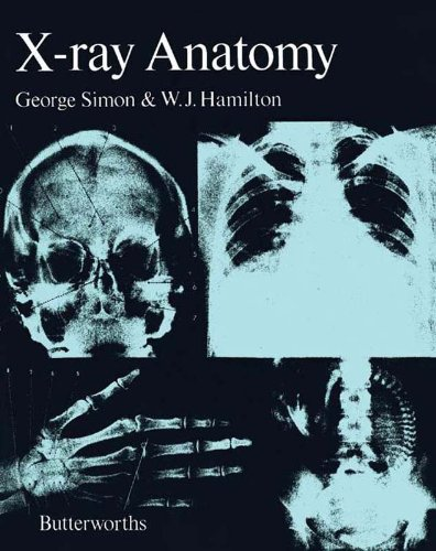 Download e-book for iPad: Human Anatomy & Physiology, Global Edition ...