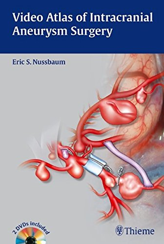 Video Atlas of Intracranial Aneurysm Surgery