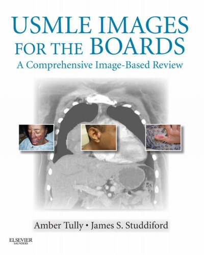USMLE Images for the Boards E-Book: A Comprehensive Image-Based Review (English Edition)