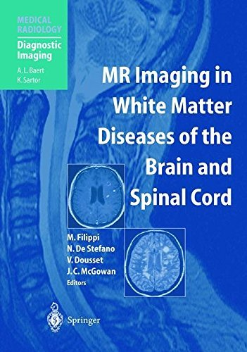MR Imaging in White Matter Diseases of the Brain and Spinal Cord (Medical Radiology) by M. Filippi (2005-05-09)