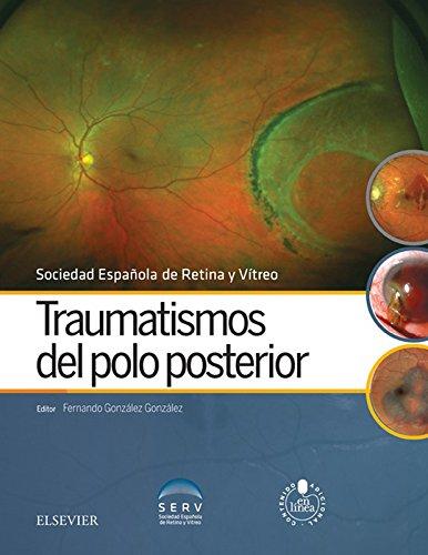 Traumatismos del polo posterior por Sociedad Española de Retina y Vítreo
