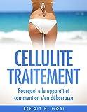 Cellulite Traitement (Version Française): Pourquoi elle apparaît et comment on s'en débarrasse