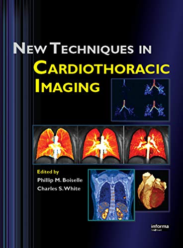 New Techniques in Cardiothoracic Imaging (English Edition)