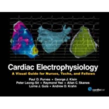 Cardiac Electrophysiology: A Visual Guide for Nurses, Techs, and Fellows