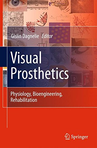 Visual Prosthetics: Physiology, Bioengineering, Rehabilitation