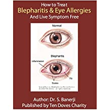 How to treat Blepharitis and Eye Allergies and live symptom free: Blepharitis Guide written by a Doctor. (English Edition)