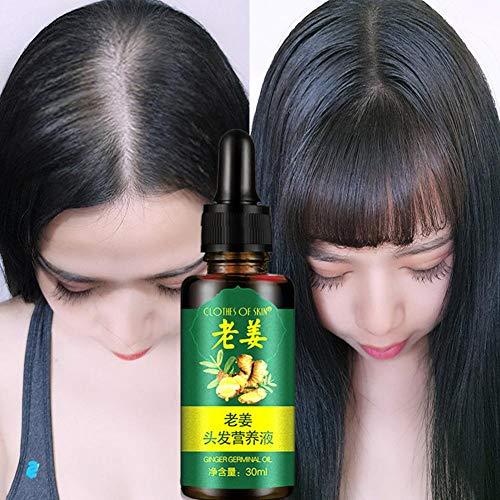 Huile de gingembre germinal, 30ml cheveux repousse cheveux résistants à la perte de cheveux croissance essence huile rapide puissant soins capillaires huile essentielle traitement liquide