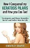 Kp Treatments - Best Reviews Guide