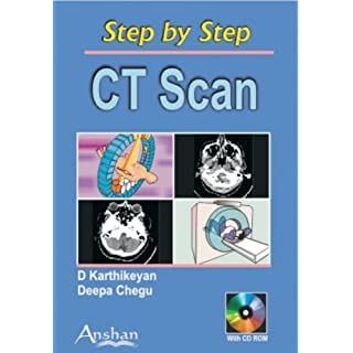 Step by Step Ct Scan (Step by Step (Anshan)) by D. Karthikeyan (2006-06-01)