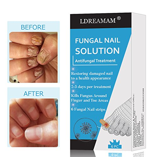 Pilz Nagel Behandlung,für Nagelpilz,Nagel Behandlung,Nagelpflege zur Behandlung,Nagelerneuerung Behandlung stellt das gesunde Aussehen der Nägel verfärbt oder beschädigt,6 Stücke