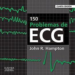 Descargar Por Utorrent 2015 150 problemas de ECG Buscador De Epub