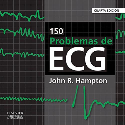 150 problemas de ECG por John Hampton